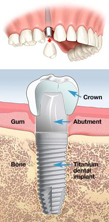 Steve Kim, D D S  | Dental Implants in Carmichael